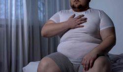 piernas hinchadas y obesidad