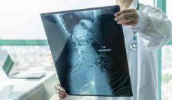 atrofia muscular espinal que es