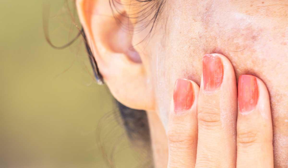 Tips para aclarar manchas en la piel por la edad