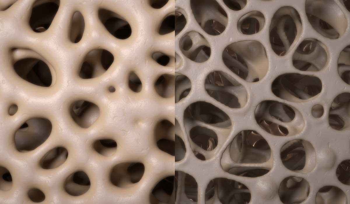 cómo enfrentar la osteoporosis