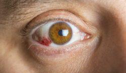 la conjuntivitis puede ser un síntoma de corona virus