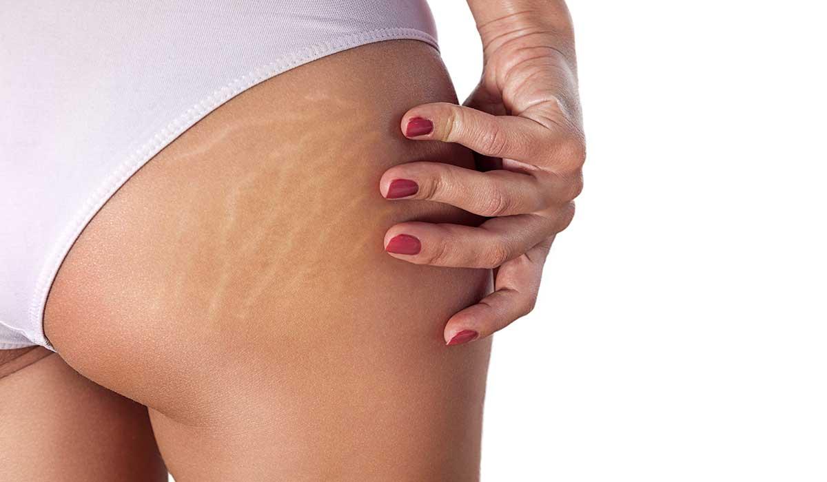 consejos de dermatólogos contra las estrías