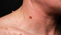 elimina las verrugas con estos tips de dermatólogos