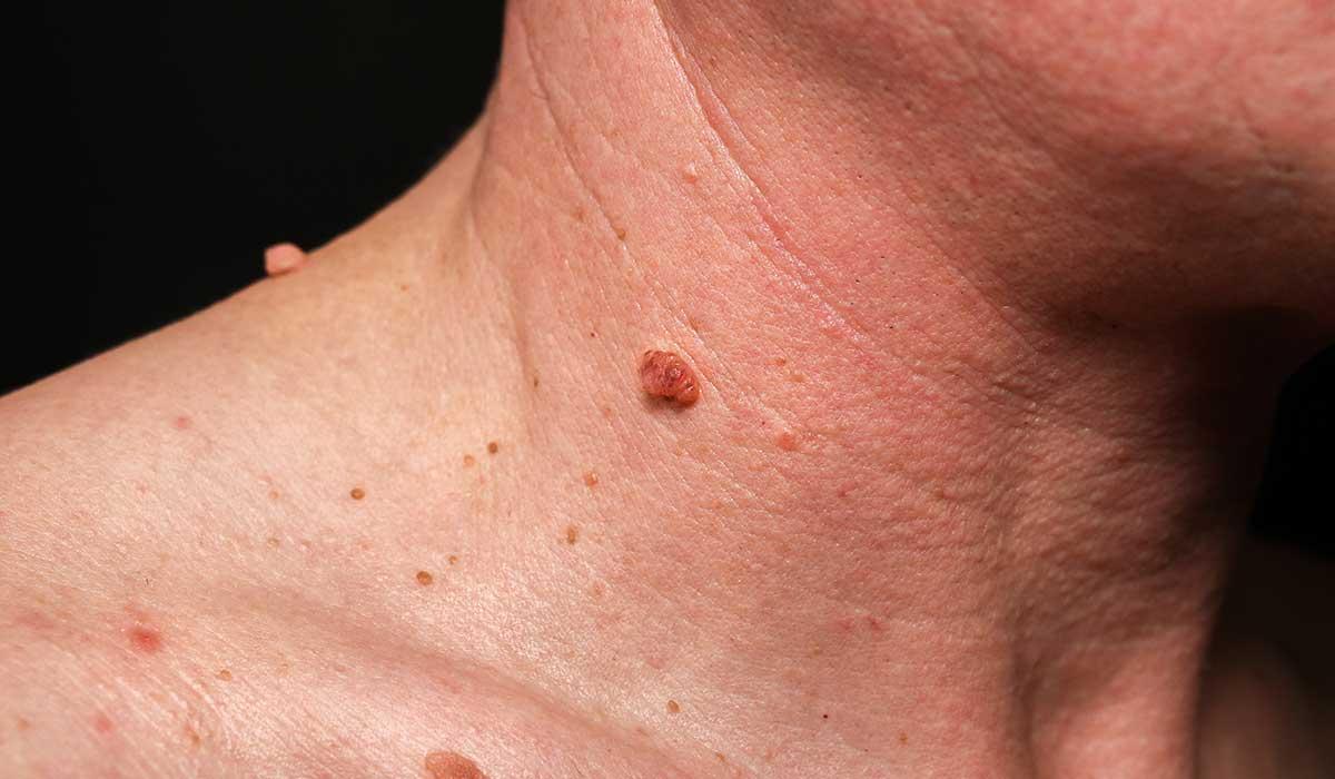 Cómo deshacerte de las verrugas, según una dermatóloga