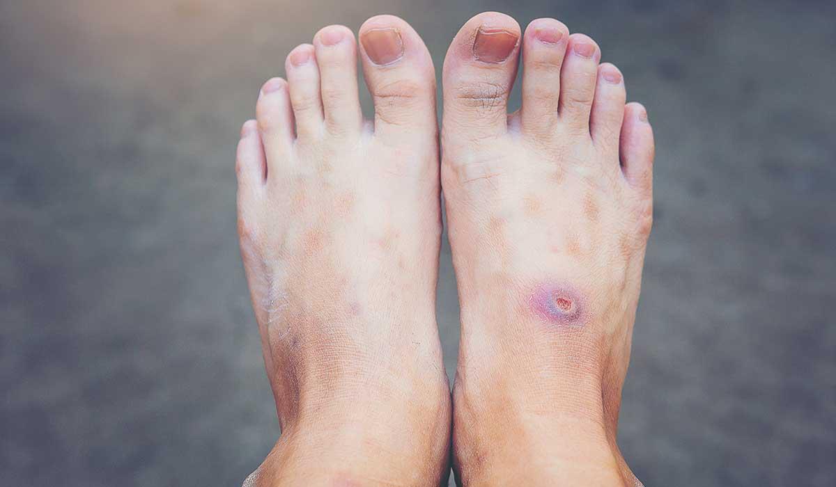 cuida tu pie si tienes diabetes
