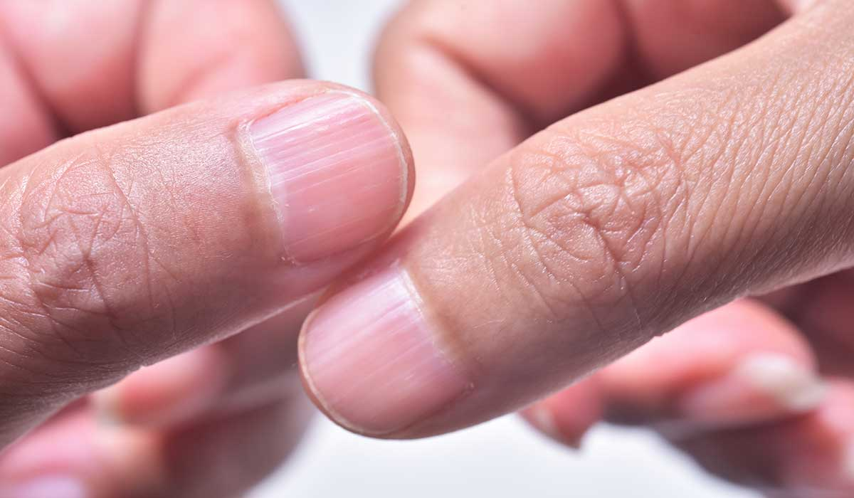 Esto es lo que significa si tienes crestas en las uñas