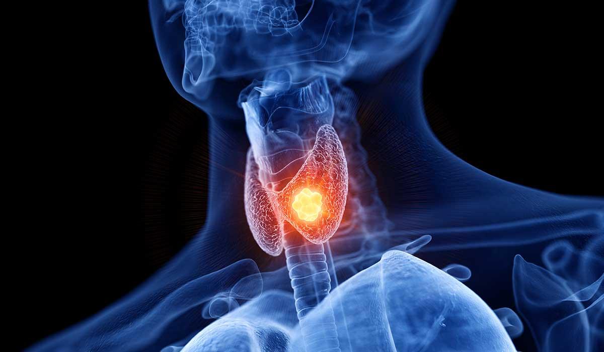 estos síntomas indican que tu tiroides está mal