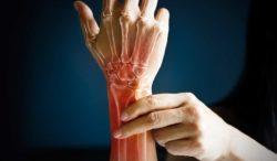 osteoporosis y salud en los huesos