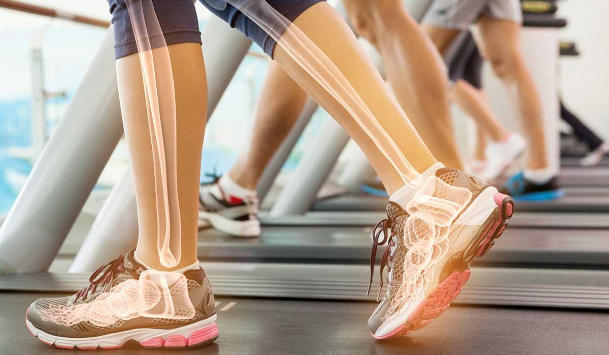 hábitos que afectan tus huesos