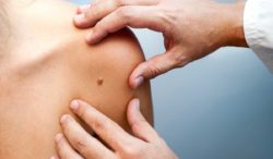 nuevas alternativas para el tratamiento de melanoma