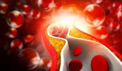 alimentos que cuidarán tus arterias