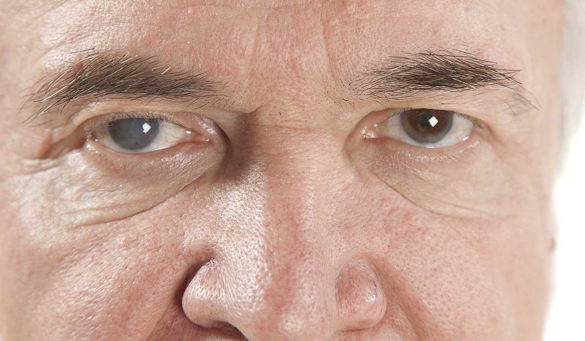evita la ceguera a causa del glaucoma