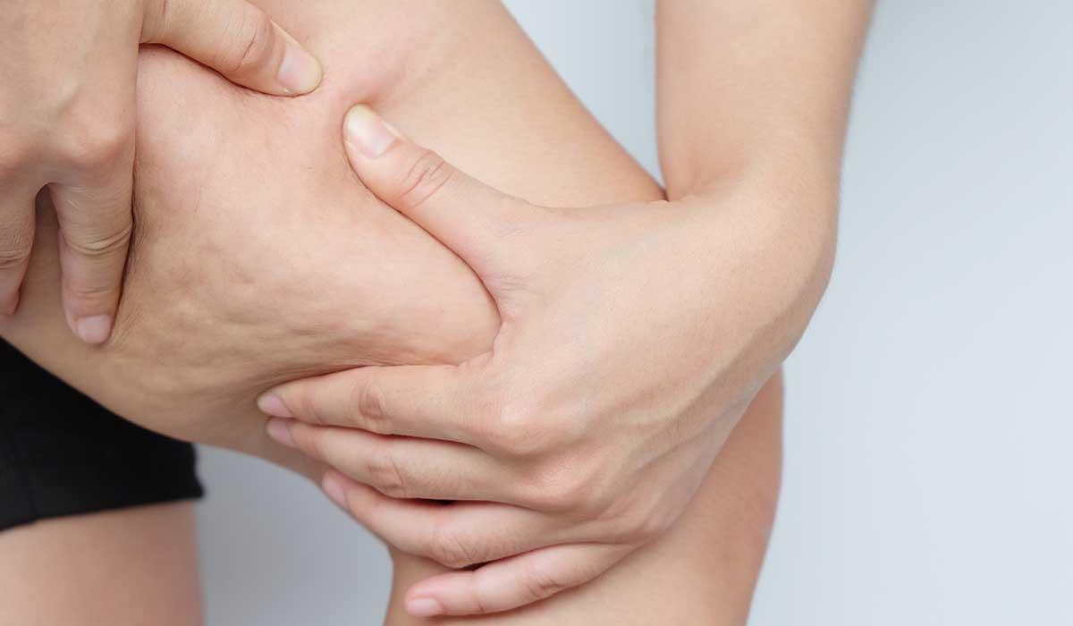 la celulitis puede ser peligrosa para la salud