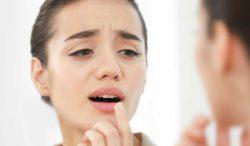 remedios naturales contra las aftas bucales