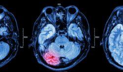 consecuencias de un derrame cerebral silencioso
