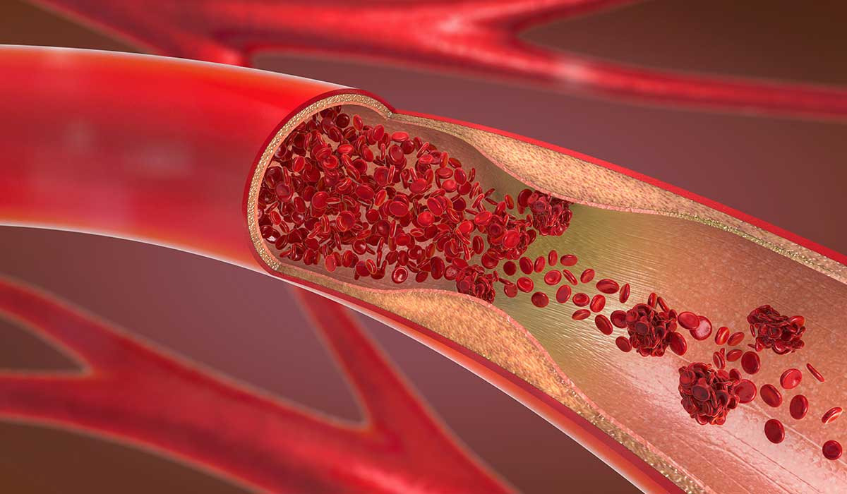 sintomas de arterias obstruidas