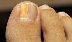 causas de las uñas amarillas en los pies