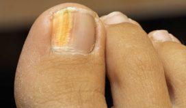 Causas de las uñas amarillas en los pies y tratamientos que ayudan