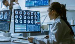los cerebros de los muertos por covid son similares a quienes mueren de Alzheimer y Parkinson