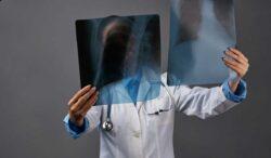 exámenes médicos que pueden salvarte la vida