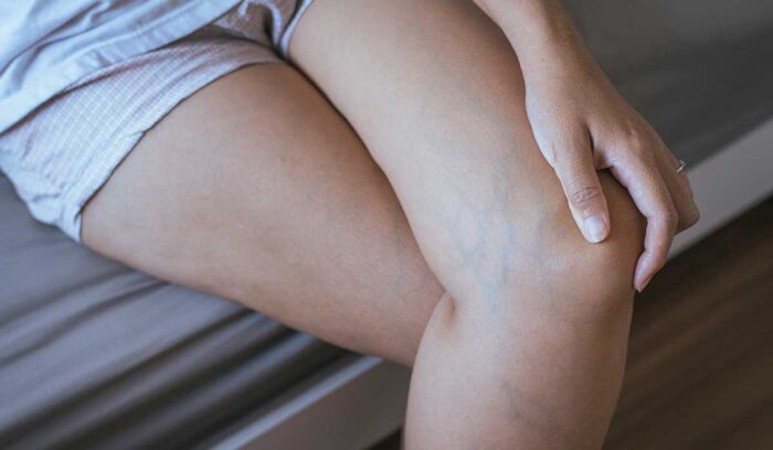 juanpablo medina pierde una pierna a causa de la trombosis