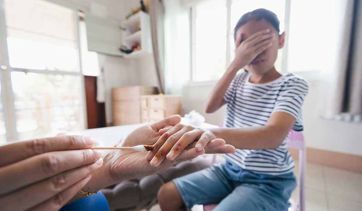 la importancia de ensenar a tus hijos primeros auxilios