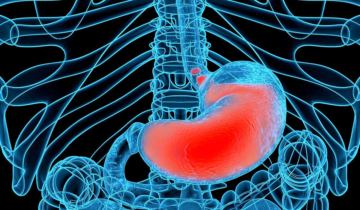 formas en las que la acidez te afecta y enfermedades relacionadas